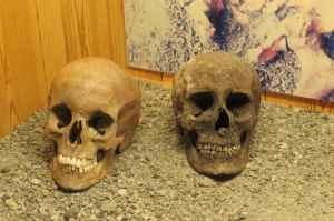 IMG_1254- Oubliez les vikings aux dents sales, même les squelettes ont encore de belles dents blanches.